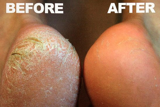 Callus Peel Shape & Polish